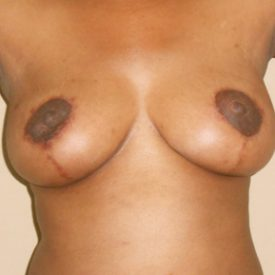 Benjamin Breast Reduction Patient 2 After2