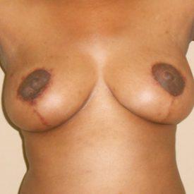 Benjamin Breast Reduction Patient 2 After2