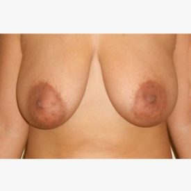 Breast Lift Pt1 Before1