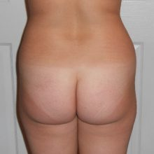 Buttlift Before